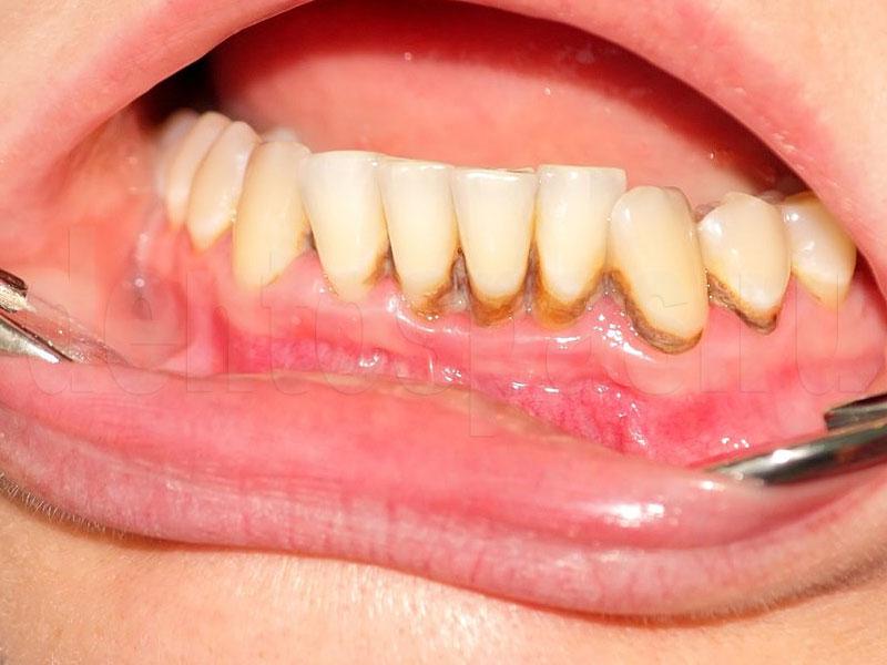 Парадонтит и парадантоз: основные симптомы, фото развития болезни на разных стадиях, рекомендации стоматологов по лечению