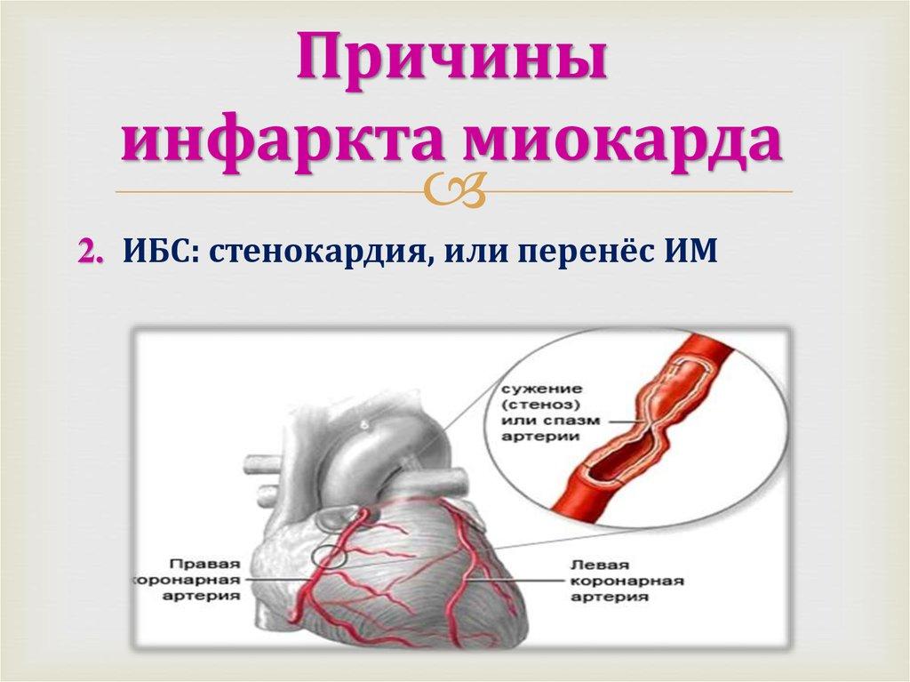 Инфаркт миокарда — причины, симптомы, первая помощь и лечение