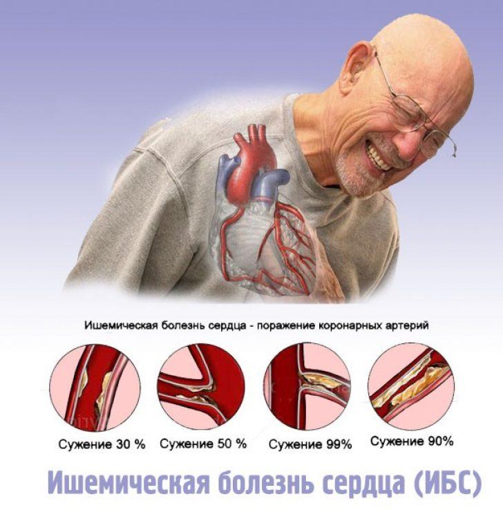 Ишемия сердца: причины, симптомы, диагностика и лечение