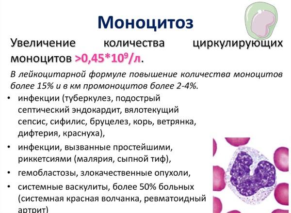 Моноциты в крови: почему бывают повышены у взрослых, что это такое, норма у женщин