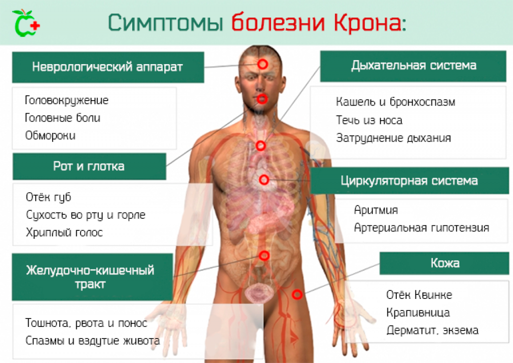 Раньше говорили, что болезнь крона – хуже, чем рак. а сегодня больные ездят в командировки и планируют семью | православие и мир