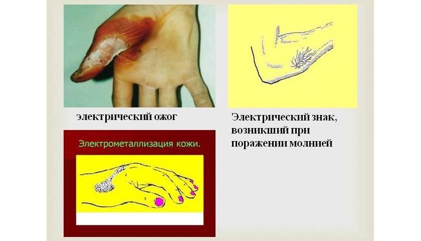 Электротравмы: степени, симптомы и оказание помощи