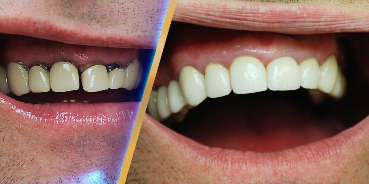 Металлокерамическая коронка – цена, фото, виды металлокерамики на зубы