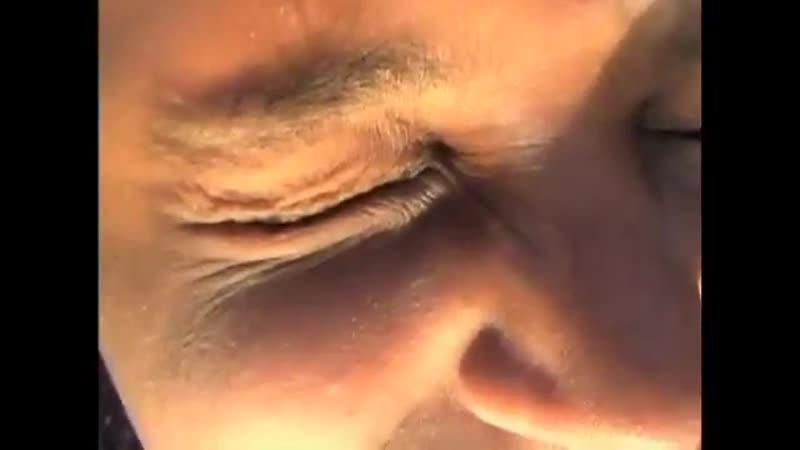 ᐉ а что обрезают у женщин. разновидности обрезания у женщин. что обрезают при женском обрезании - mariya-mironova.ru