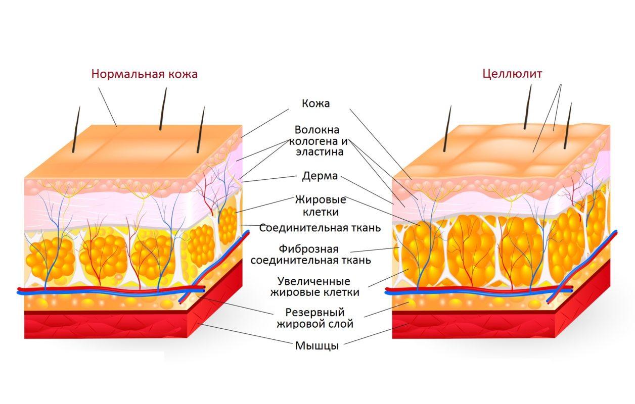 Основные причины возникновения целлюлита по всему телу