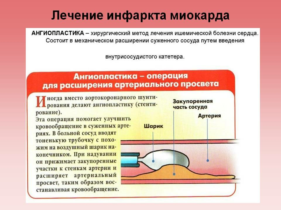 Инфаркт миокарда: причины, разновидности, симптомы, диагностика и современное лечение. консультации специалистов