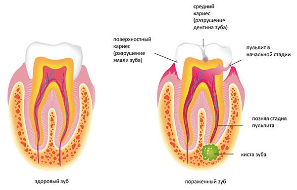 Киста зуба - лечение, симптомы, методы удаления. низкие цены в москве   новадент
