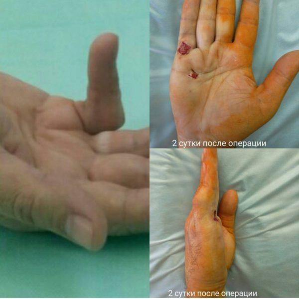 Контрактура сустава: что это такое, фото, причины, лечение