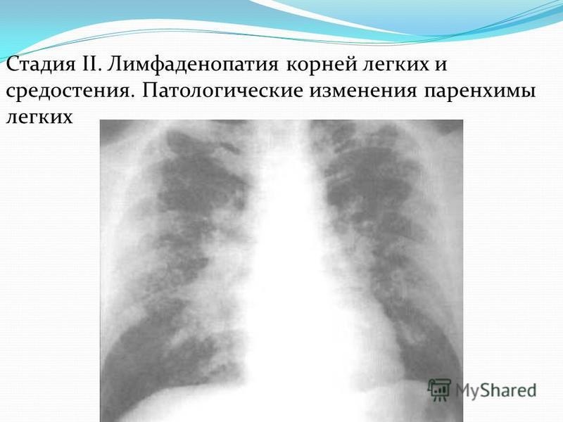 Лимфаденопатия: что это такое, виды, симптомы, лечение - prorak.info