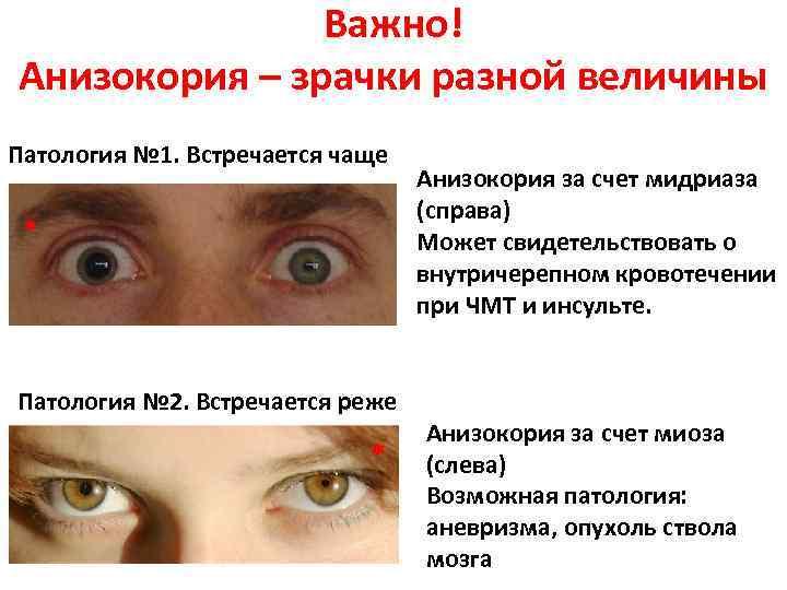 """Анизокория: причины, диагностика, лечение - """"здоровое око"""""""