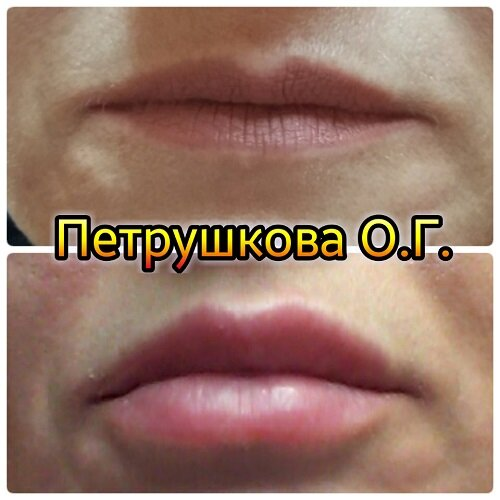 Увеличение губ гиалуроновой кислотой: подготовка к процедуре, противопоказания