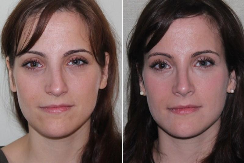 Выровнять перегородку носа поможет эндоскопическая септопластика | пластическая хирургия и косметология