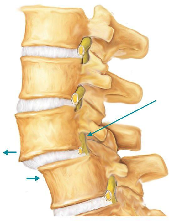 Спондилез шейного отдела позвоночника (деформирующий): симптомы и лечение, что это такое