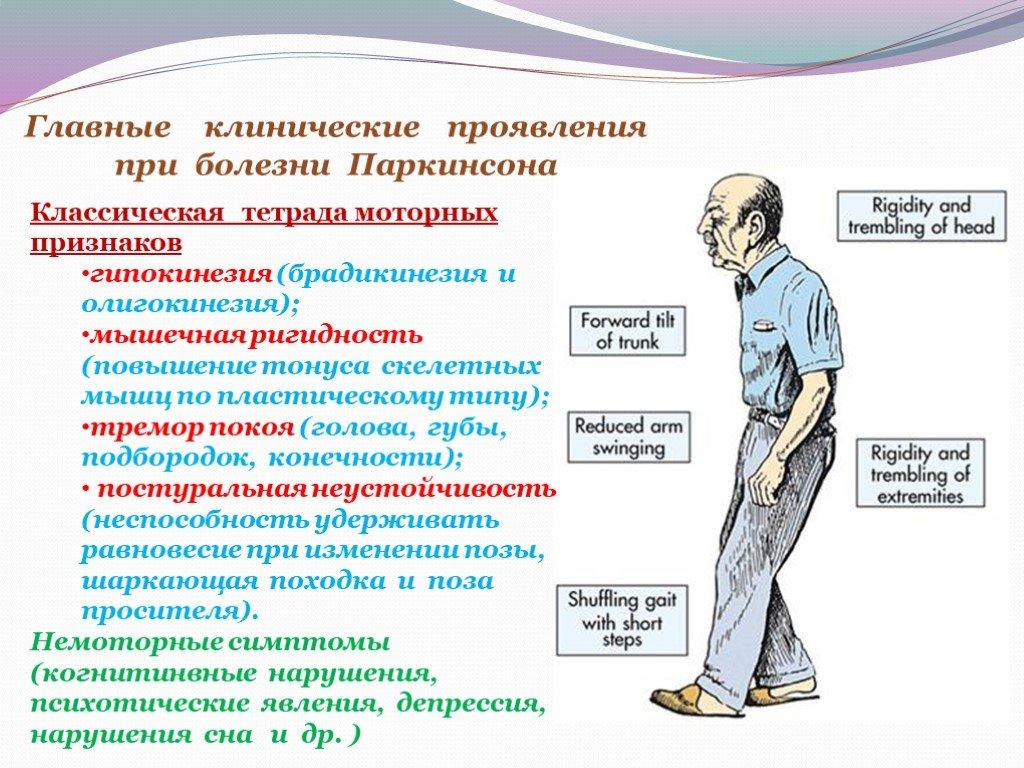 Что такое болезнь паркинсона: признаки, причины и лечение паркинсонизма — net-bolezniam.ru