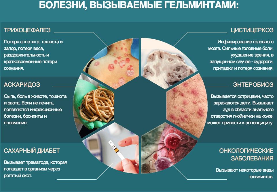 Чем лечить глисты у человека: какие таблетки принимать. симптомы и лечение в домашних условиях