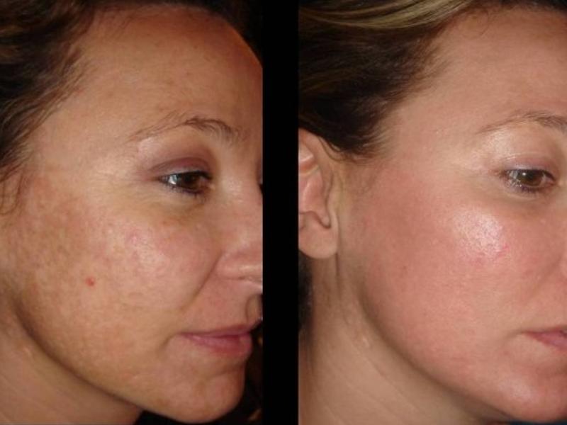 Что такое микронидлинг и чем он хорош для кожи