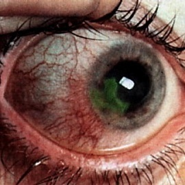 Акантамёбный кератит: лечение, симптомы, классификация, диагностика и профилактика