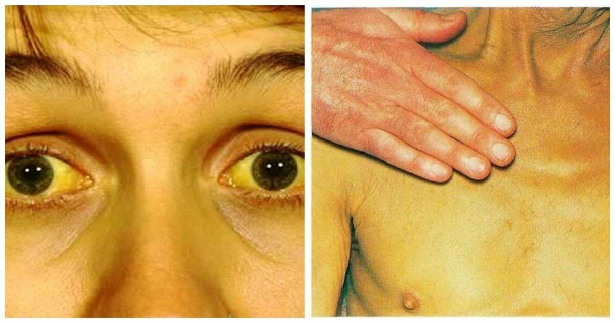 Обтурационная желтуха: что это такое, симптомы и лечение