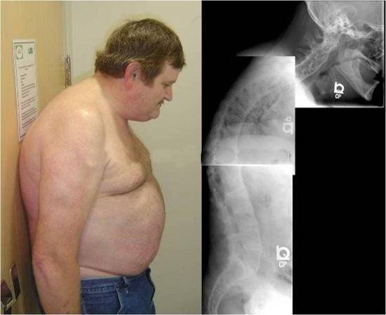 Болезнь бехтерева у мужчин: симптомы, причины, лечение и последствия