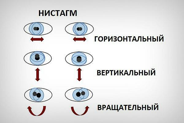 Нистагм глаз: горизонтальный, спонтанный, вестибулярный, ротаторный, врожденный. причины и лечение.