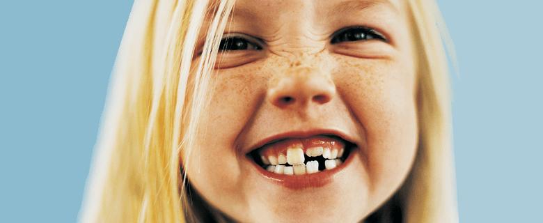Что такое ортодонтические трейнеры для зубов, чем устройства т4к отличаются от т4а и т4в, какие бывают расцветки?