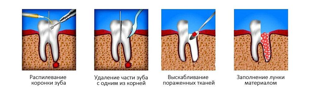 Способы изготовления, применение турунды в ухо и нос