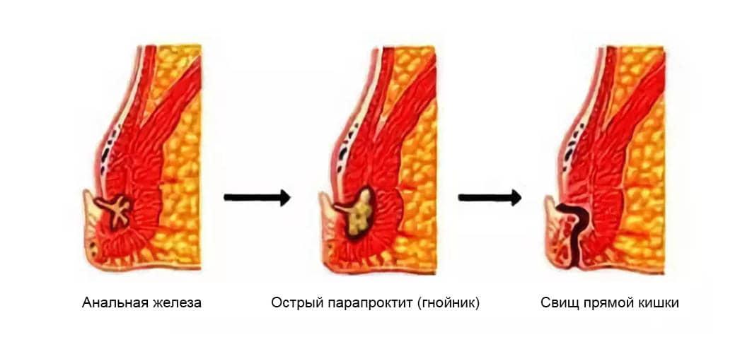 Парапроктит - лечение и симптомы - симптомы, диагностика, лечение, профилактика