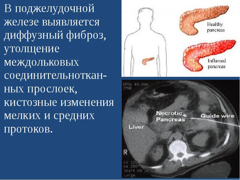 Диффузные изменения паренхимы поджелудочной железы. паренхима поджелудочной что это.