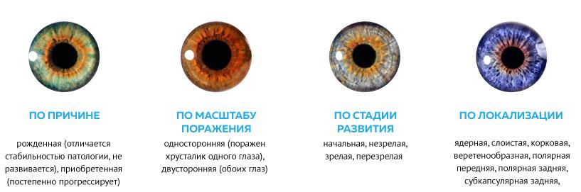 Катаракта: причины, симптомы и лечение в статье офтальмолога-хирурга клюшникова е. в.