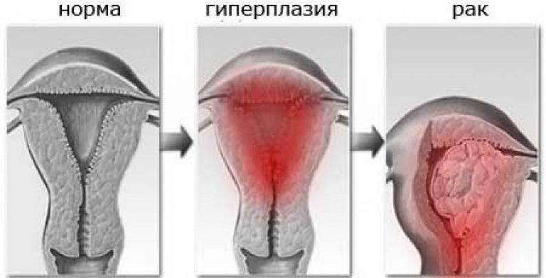 Выскабливание при гиперплазии эндометрия: как проводится, последствия
