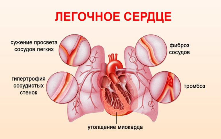 Легочное сердце - симптомы, причины, лечение и диагностика