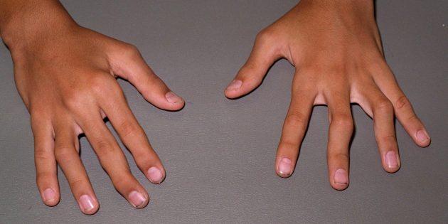 Симптоматика и терапия при ревматоидном артрите