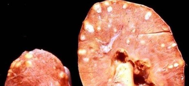 Причины, симптомы и методы лечения микролитов в почках у мужчин