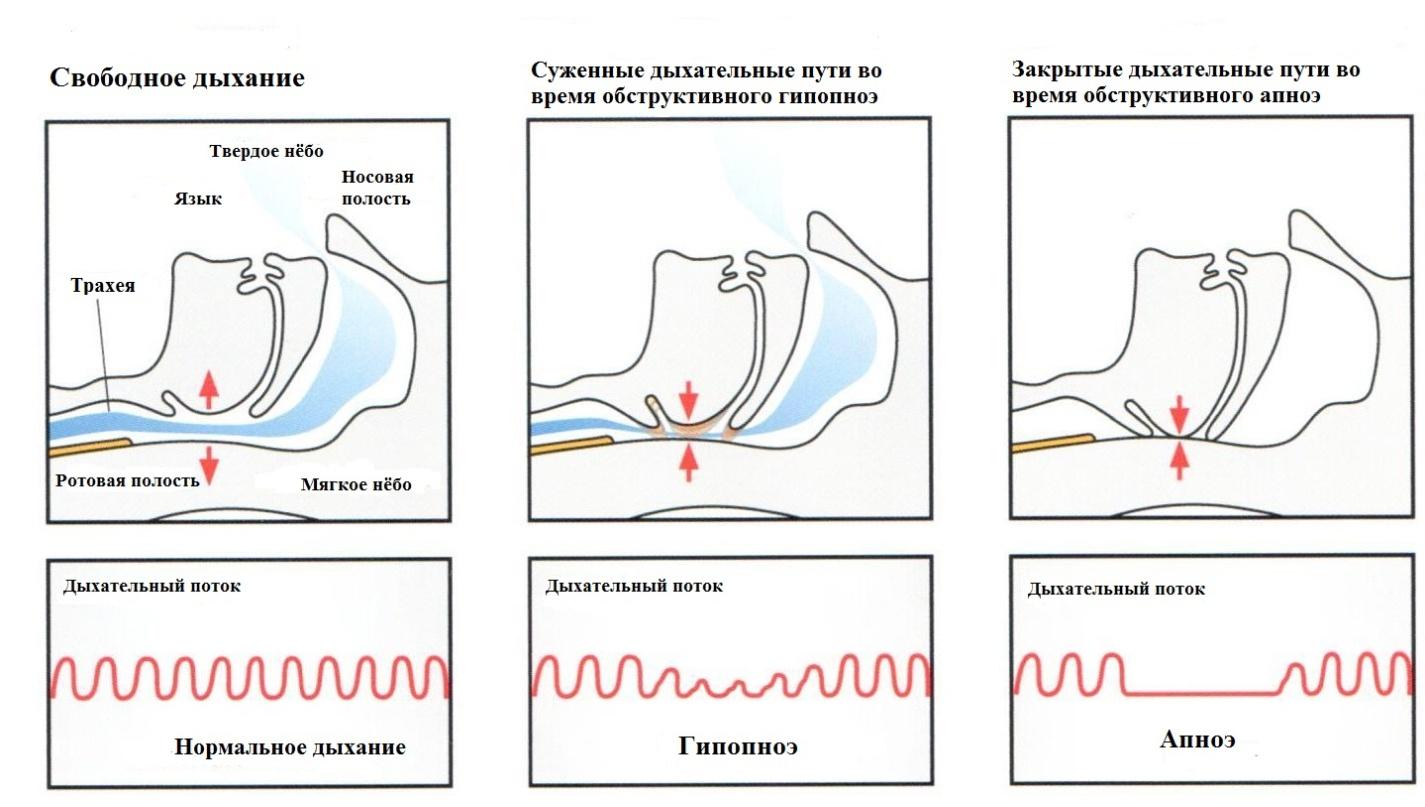 Апноэ - что это такое, лечение синдрома. симптомы и причины апноэ и как лечить.