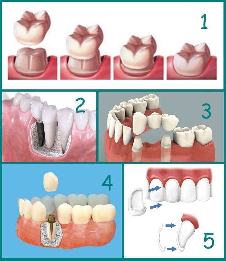 ᐉ имплантология - наука о восстановлении зубного ряда
