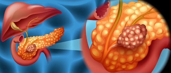 Синдром золлингера-эллисона: симптомы и лечение
