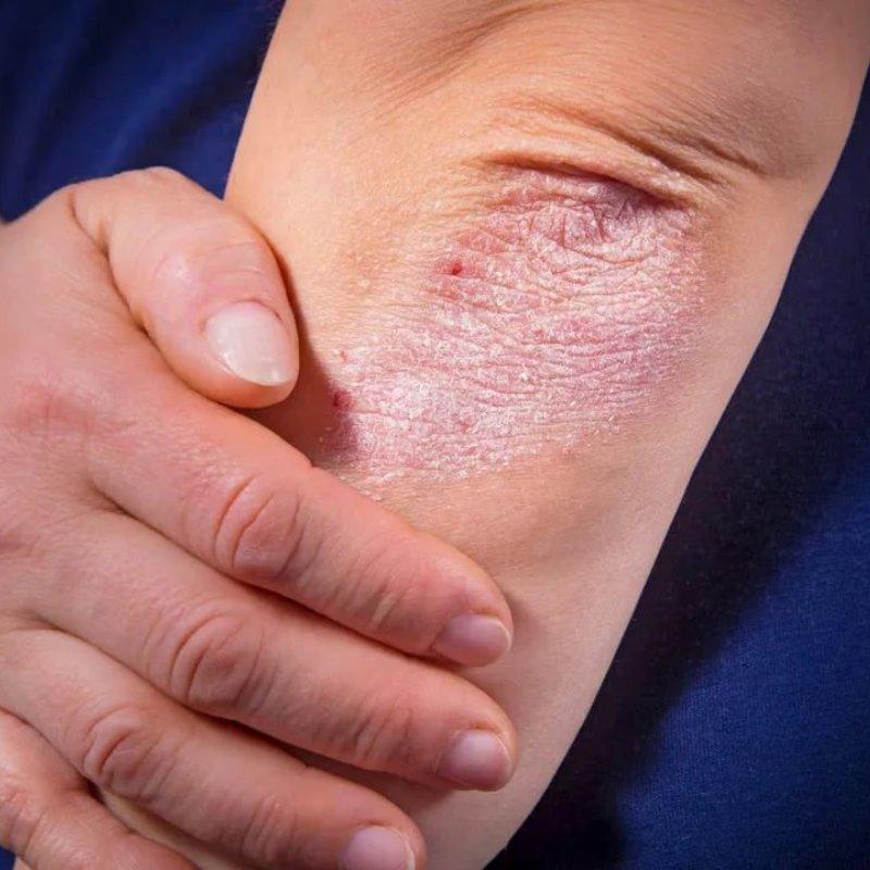Фото и симптомы псориаза кожи: признаки как начинается псориаз, начальная и первая стадия