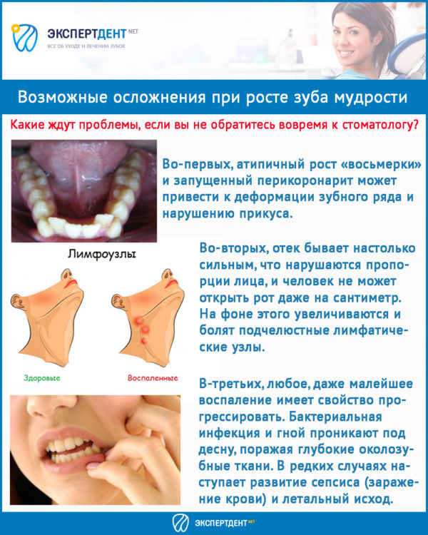 Третьи моляры или восьмерки – зачем нужны зубы мудрости