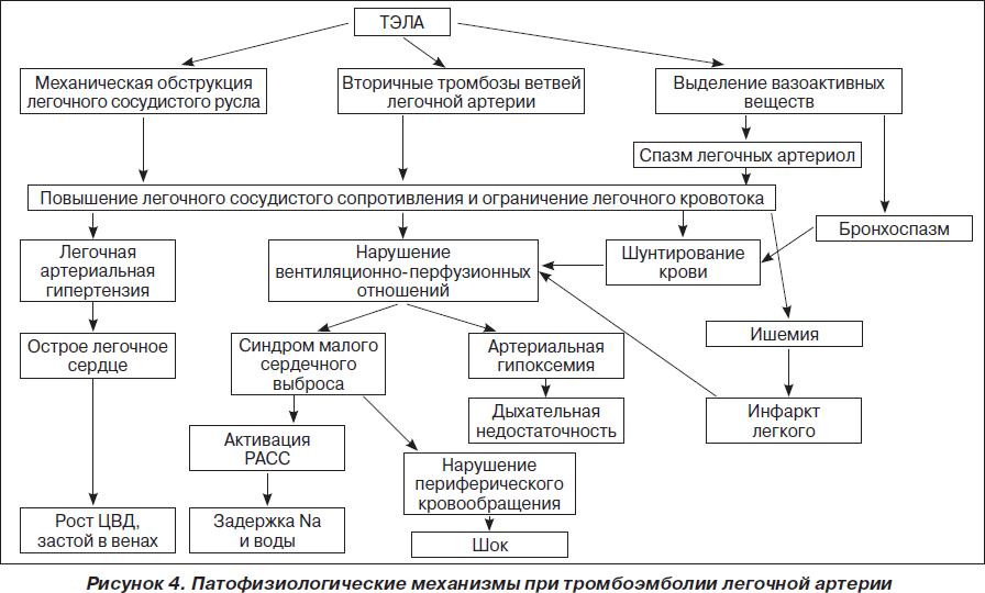 Экстракорпоральная мембранная оксигенация при остром инфаркте миокарда, осложненном кардиогенным шоком
