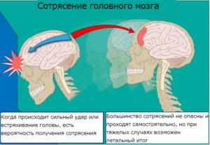 Сотрясение мозга: симптомы и лечение у взрослых в домашних условиях