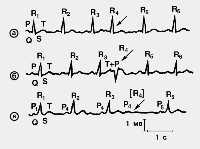 Опасна ли экстрасистолия: внеочередное сокращение угрожает насосной функции сердца