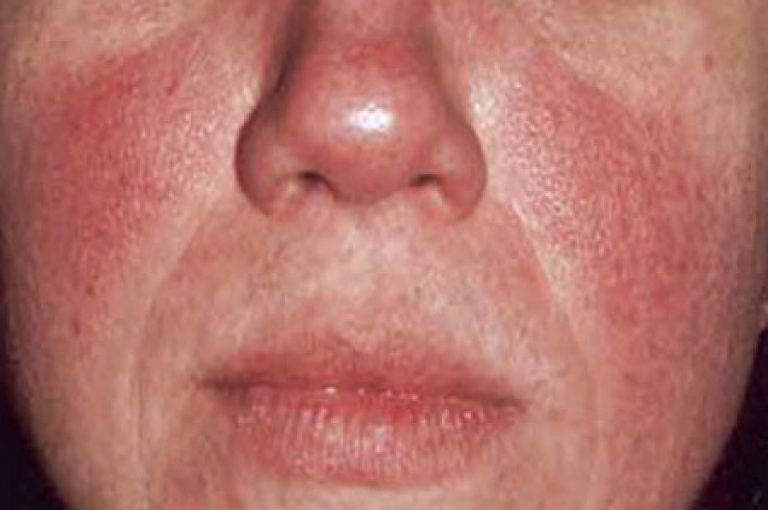 Розацеа на лице - первые симптомы, стадии, причины и возможные осложнения