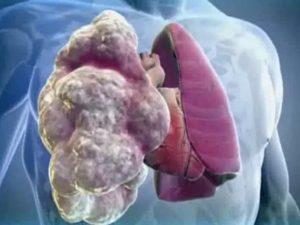 Диффузная эмфизема легких: прогноз жизни. что это такое и как долго с этим можно жить?