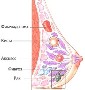 Причины появления фиброаденома молочной железы у женщин и профилактика возникновения — портал о заболеваниях груди