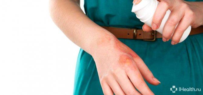 Ожоги – причины, симптомы, степени, первая помощь, способы лечения