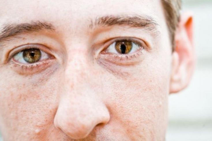 Глазные капли мидримакс