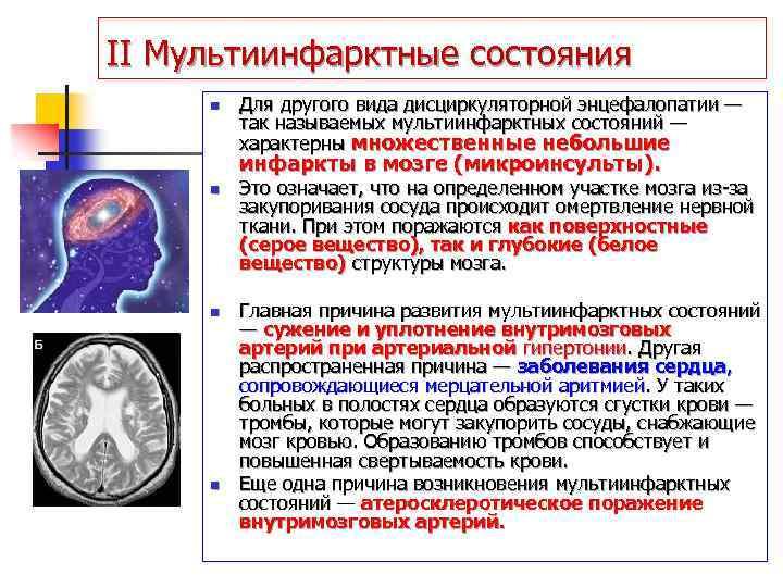 Дисциркулярная энцефалопатия в симптомах и стадиях