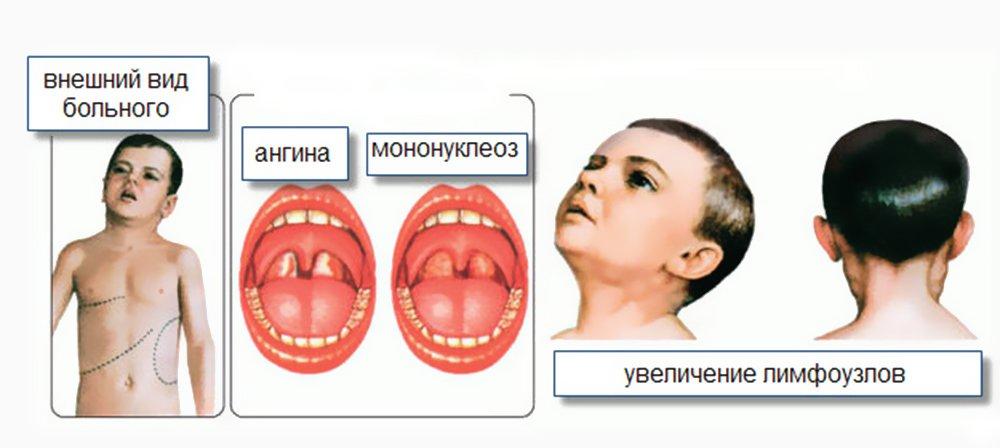Вирус эпштейна барр: симптоматика и лечение у детей и взрослых