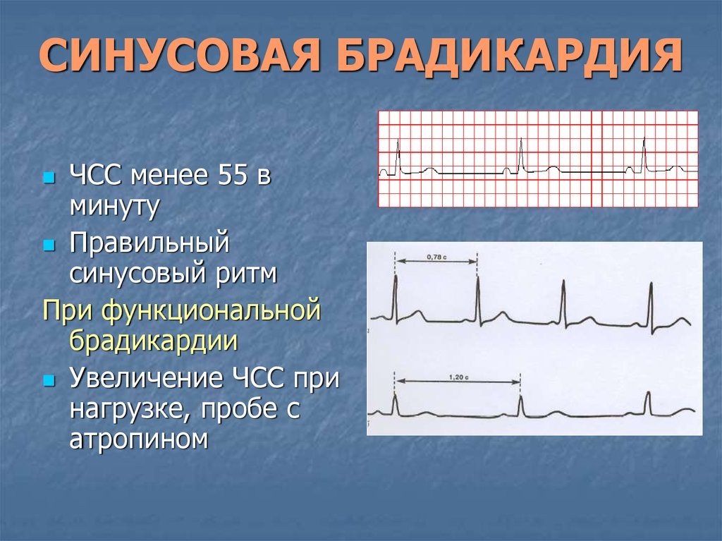 Брадикардия сердца — симптомы и лечение народными средствами - заболевания сердца