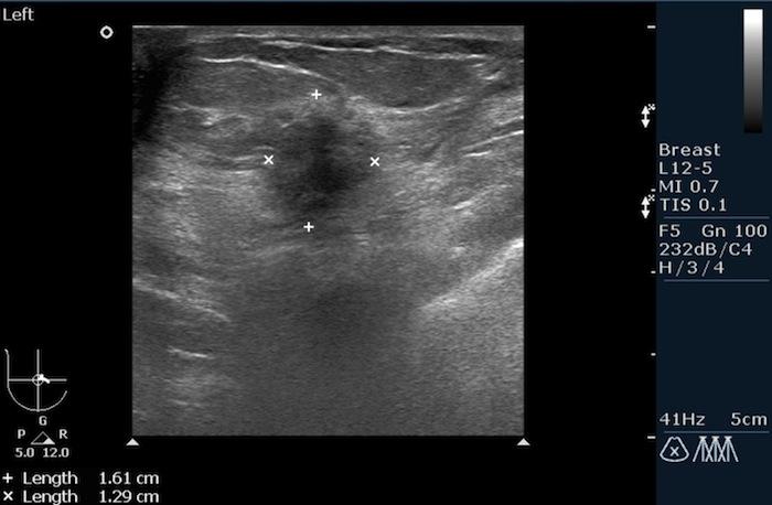 Маммография - что это: как проходит и что показывает, виды метода и подготовка к обследованию груди, цена и расшифровка результата